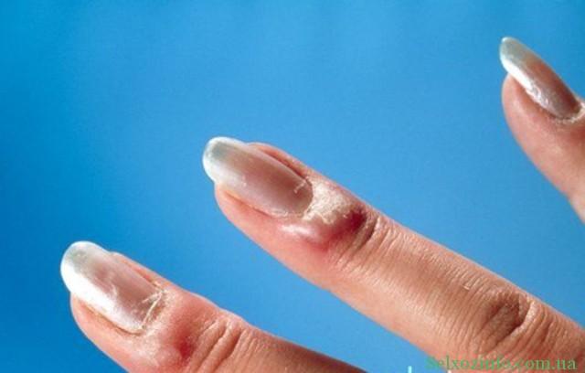 Воспаление ногтей на руках